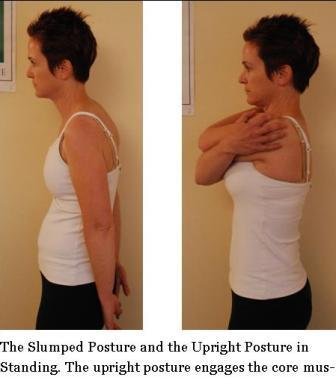 Slumped and Upright Standing Posture